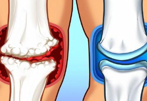 a csípő-diszpláziát kezelni kell