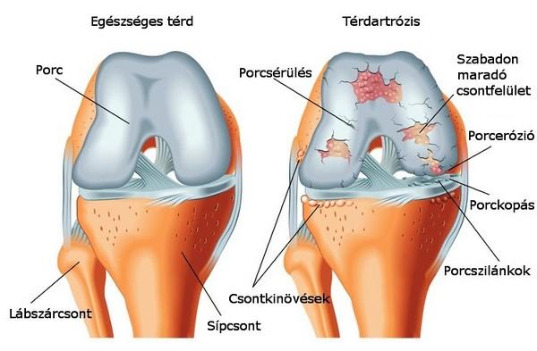 fájdalom a csípőízületben skoliozussal fáj a könyökízület és a közelben