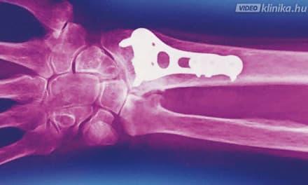 csukló műtét utáni fájdalom