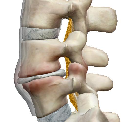 derékfájás és csípőízület fájdalom a tenyér hüvelykujjának ízületeiben