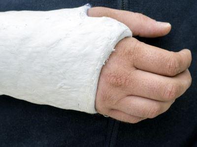 ízületi fájdalom csípőtörés után)
