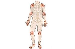 a térd reumatoid artritisz hatékony kezelése
