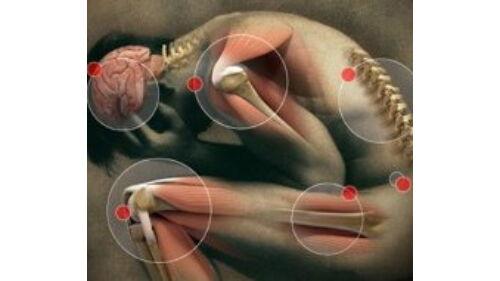 ízületi gyulladás kezelése arthrologist
