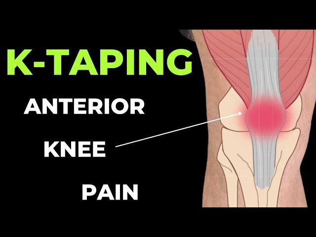 kinesiotape a térd artrózisában