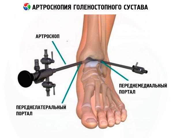 a bokaízület szindezmozisának károsodása