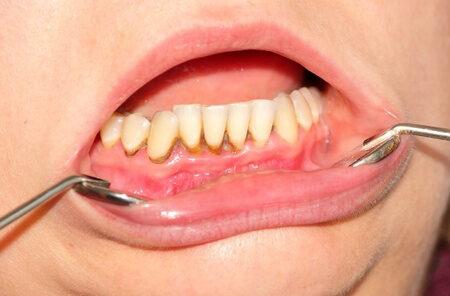 ízületi fájdalom a szájban nyújtó gyakorlatok ízületi fájdalmak kezelésére