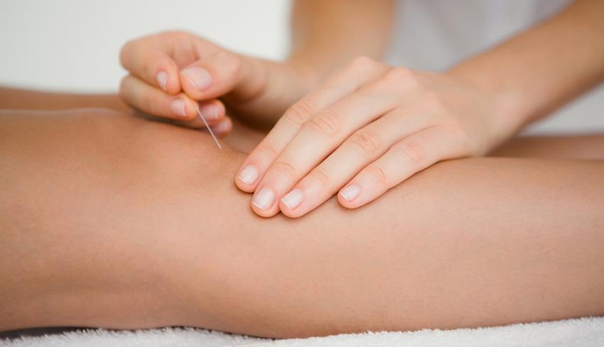 akupunktúra ízületi fájdalmak esetén
