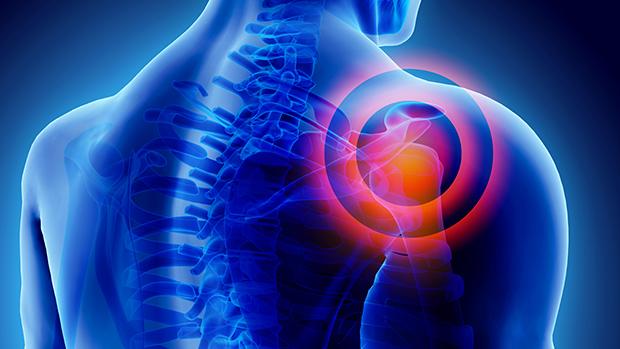 vállízület gyulladás kezelése sebész ízületi gyulladás