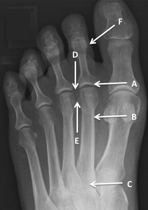 osteoarthritis second metatarsophalangeal joint