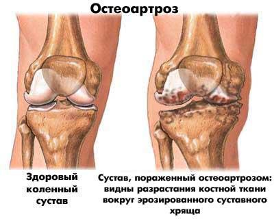 a csípőízület második fokozatának deformáló artrózisa)