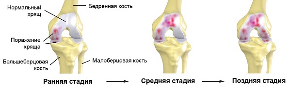 Az artrózis (ízületi porckopás) tünetei, okai, kezelése