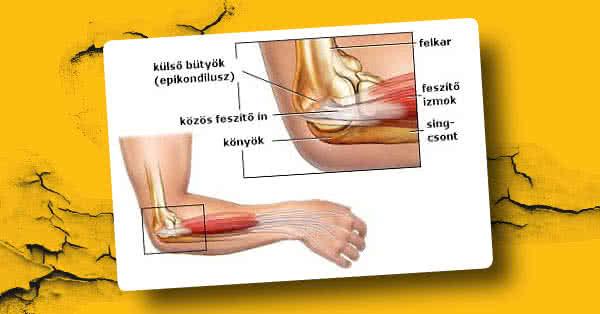 a könyökízület külső epicondylitisének tünetei és kezelése