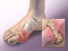 allopurinol ízületi fájdalmak kezelésére