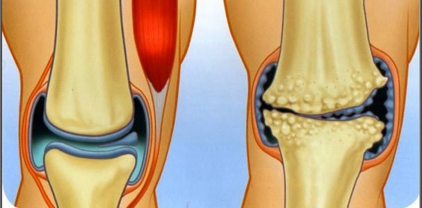 hogyan lehet lefogyni a térd artrózisával hasmenés és ízületi fájdalmak
