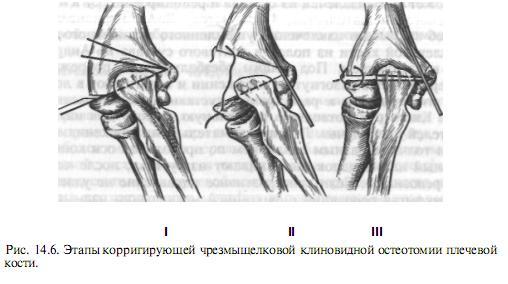 A csípőtáji törés, kezelés, műtét és rehabilitáció tünetei - Atheroma