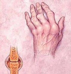 ízületek rheumatoid arthritis