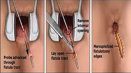a könyök ízületi zsákjának nyálkahártyájának gyulladása