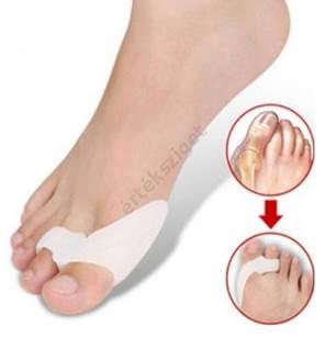 hirtelen fájdalom a nagy lábujjak ízületeiben)