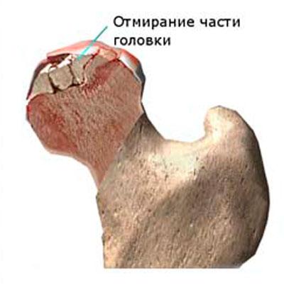 a csípőízület kezdeti megnyilvánulása