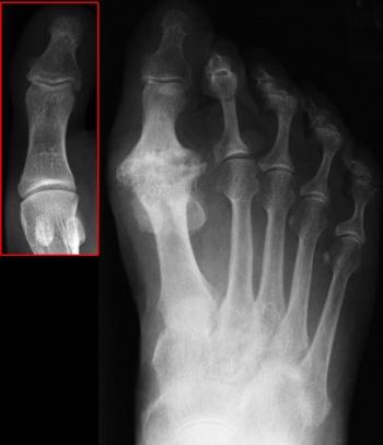 osteoarthritis 1st mtp joint