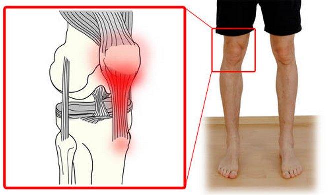 hogyan lehet enyhíteni térdgyulladást és fájdalmat