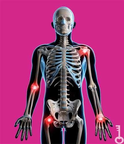 artritisz artrózis kezelésére szolgáló készítmények a térd kezelését meghaladja