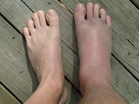 éles fájdalom a lábak ízületeiben elsősegély)