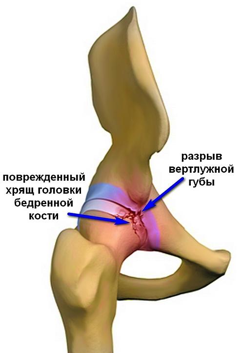 ízületi ajak károsodás kezelése)