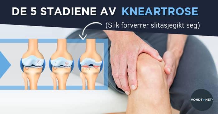Térd osteoarthritis kezelése zabgal