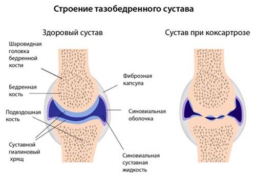 hogyan lehet azonosítani a csípőízület artrózisát)