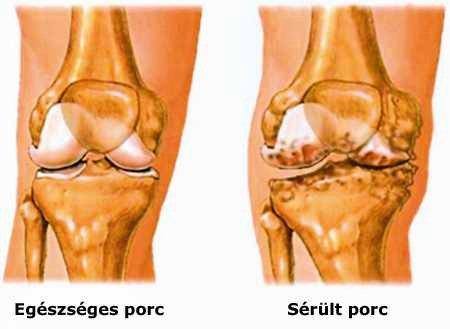 ízületi sérülés a lábon