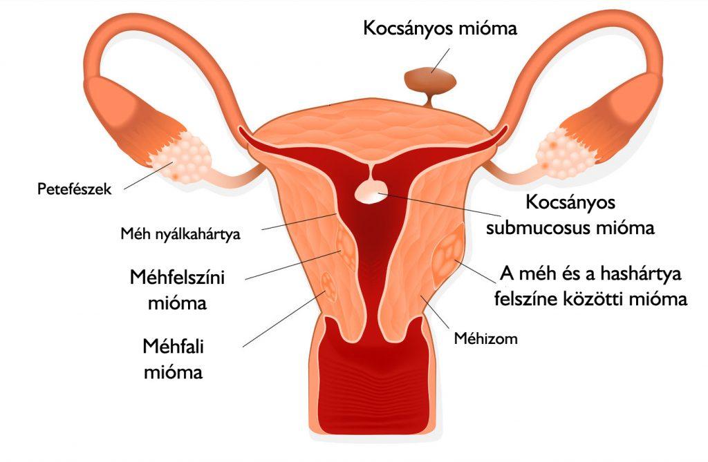 Az endometriózis okai és tünetei