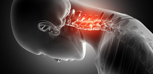 csípő-csontritkulás