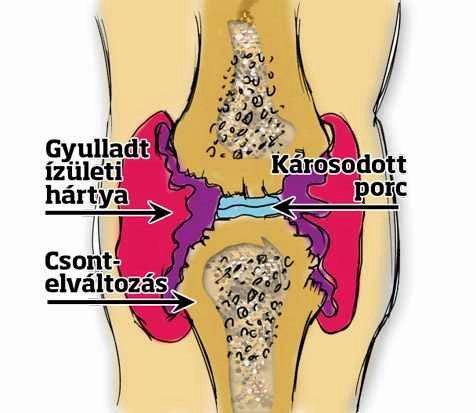 ízületi gyulladás deformáció)