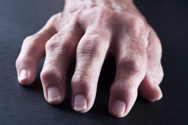 a jobb láb ízületeinek ízületi gyulladása