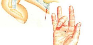 ujj hajlításakor ízületi fájdalom