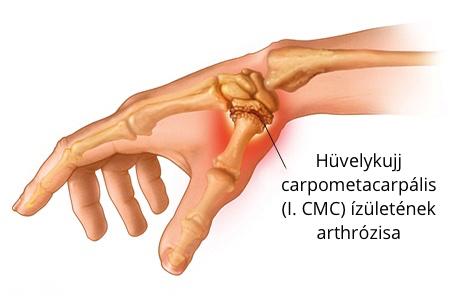 Ínhüvelygyulladás: okok, tünetek, kezelés és megelőzés - fájdalomportászoszszc.hu