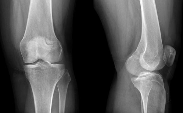 Tünetek és kezelés a deformáció térd Osteoarthritis