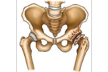 az ízületi fájdalom okának diagnosztizálása artrózis boka kezelő tabletták