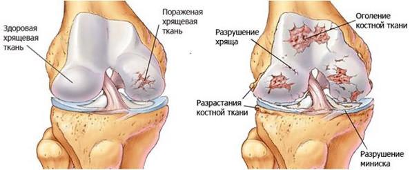 teraflex áttekintés a térd artrózisáról gyógynövények ízületi gyulladás és ízületi gyulladás kezelésére