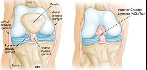 hogyan lehet érzésteleníteni a térd artrózisának fájdalmait