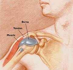 térdízületi kezelés bursitis otthon)