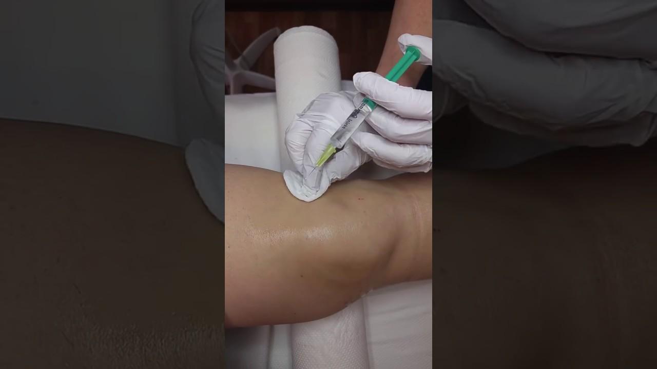 ózonterápia térdízület kezelése