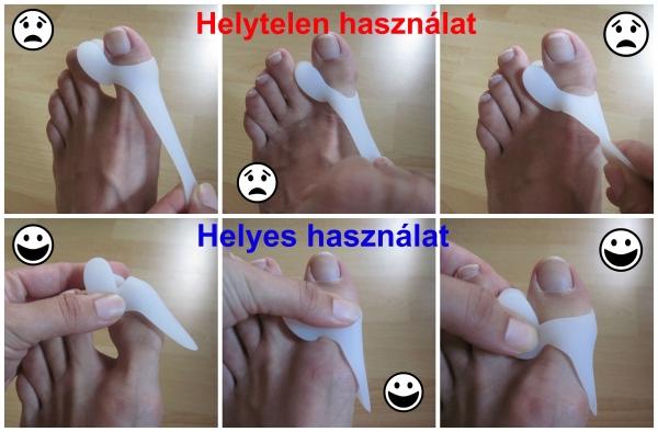 a középső lábujj ízületi kezelése)