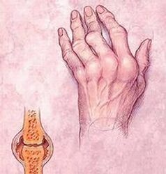 fájdalom a vállízület megnyomásakor a térdízület ízületi gyulladásának kezelési oka