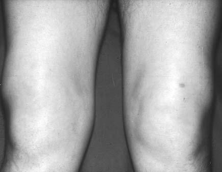 a kezek falának artrózisos kezelése