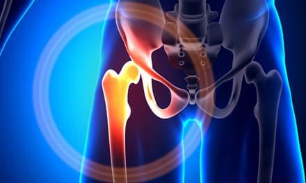 ízületi gyulladás a csípőízületekben