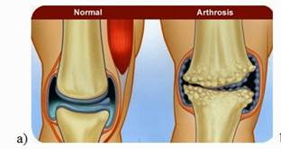 ami térd artrózisát jelenti