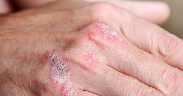 Dr. Diag - Arthritis psoriatica sine psoriasim