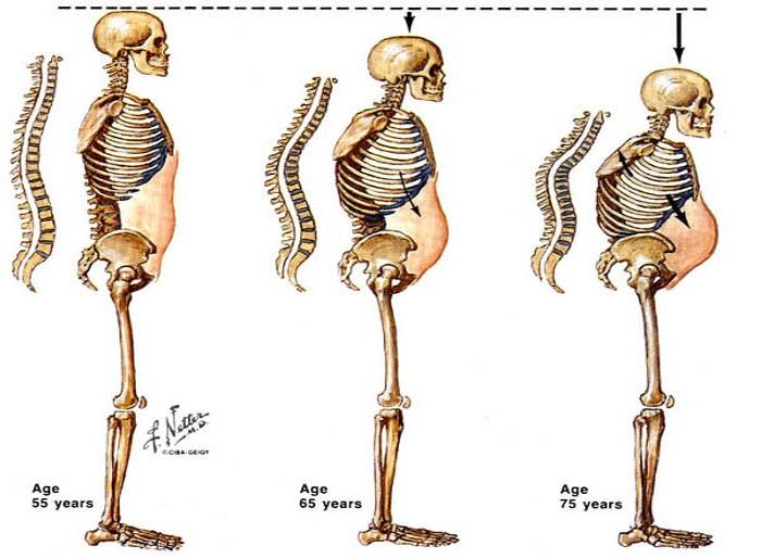 Kisízületi kopás (spondylarthrosis) - Súlypont Ízületklinika
